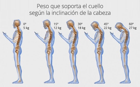peso-cuello-inclinacion-cabeza